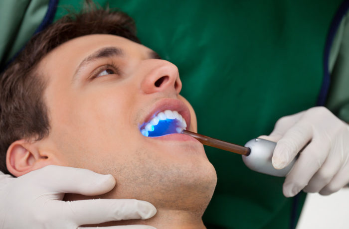 Teeth Whitening in Cerritos California